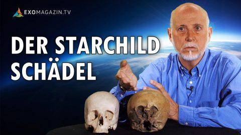Das Geheimnis des Starchild-Schädels
